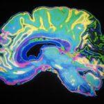 Noul tratamentul care inversează efectele bolii Alzheimer