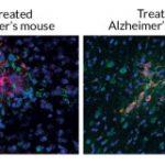 Alzheimer – aproape vindecat?