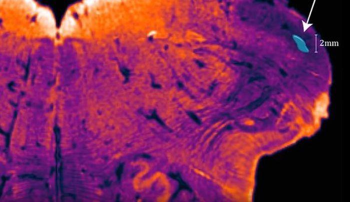 A fost descoperită o zonă necunoscută până acum a creierului uman