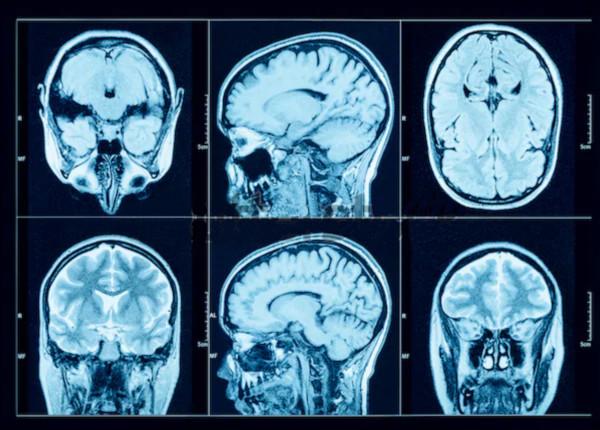 Alcoolul transformă materia cenușie din creier în apă. Fenomenul e similar imbatranirii, doar ca mai rapid